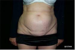 tummy tuck surgery procedure