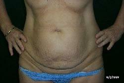 tummy tuck Perth clinic consultation