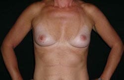 affordable breast augmentation Perth