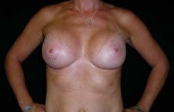affordable breast implant Perth