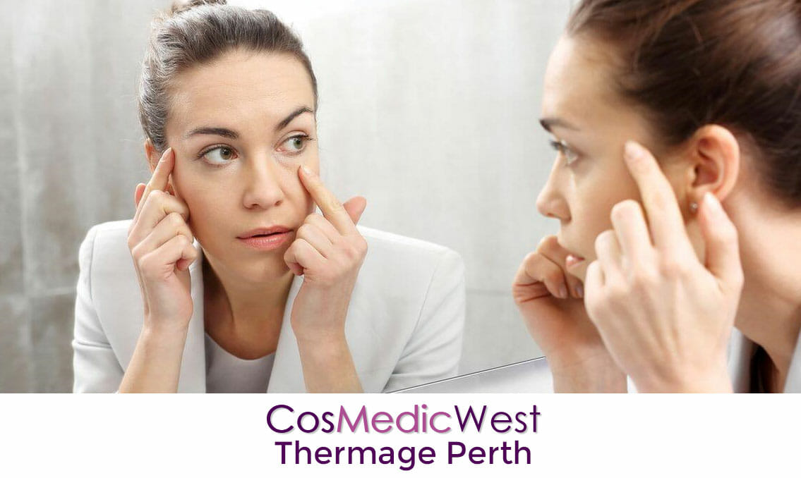 Thermage Perth