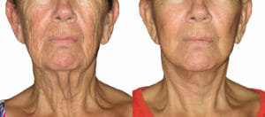 Facelift Perth Before After - Cosmetis Surgery