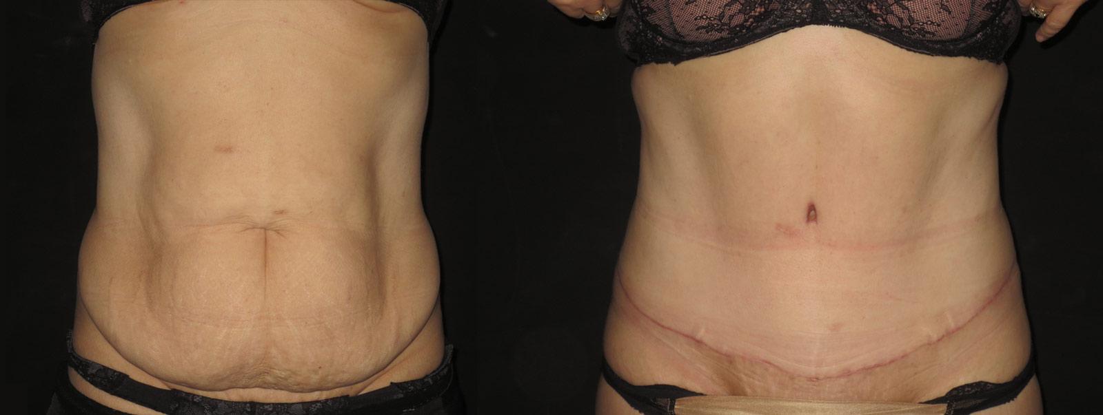 tummy tucks plastic surgeon treatments