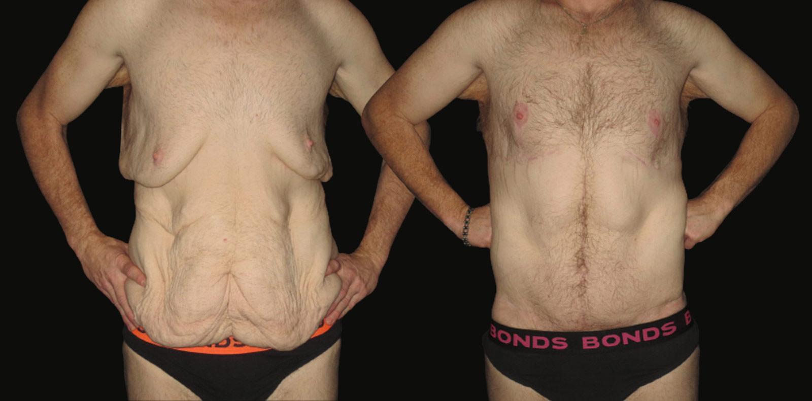 tummy tuck liposuction surgeon