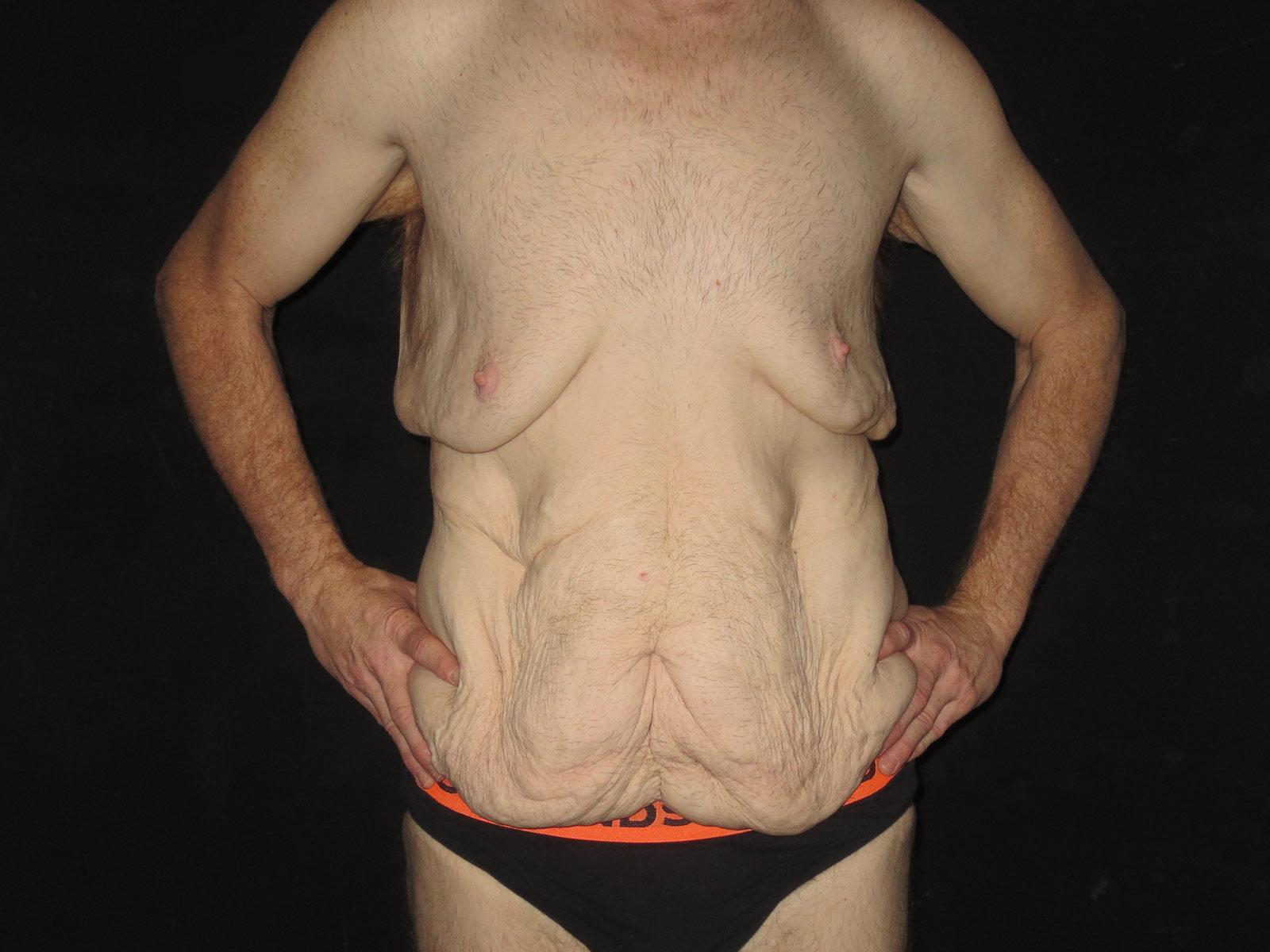mini liposuction surgery