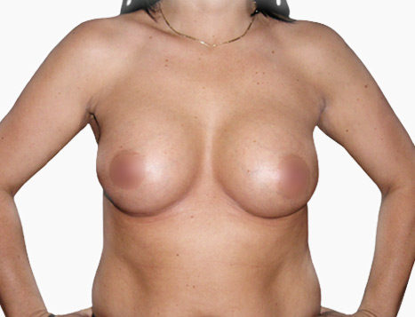 Breast Augmentation - After Dr Mark Duncan Smith