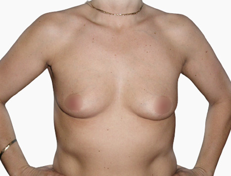 Breast Augmentation - Before Dr Mark Duncan Smith