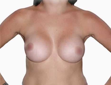 Breast Augmentation By Dr Mark Duncan Smith - After