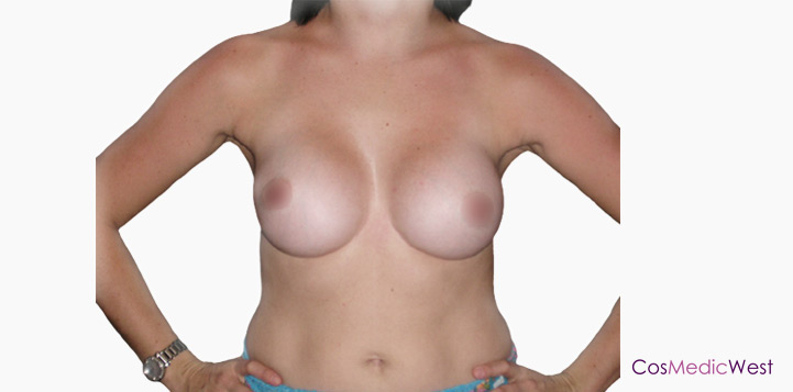 Breast Augmentation By Dr Mark Duncan Smith After