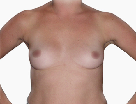 Breast Augmentation By Dr Mark Duncan Smith - Before