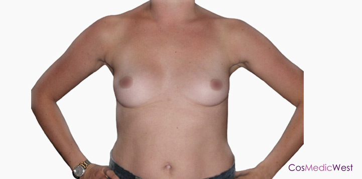 Breast Augmentation By Dr Mark Duncan Smith Before