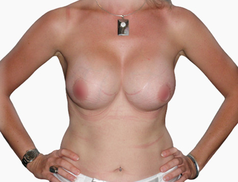 Breast Enlargement Perth - After