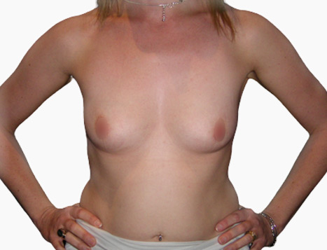 Breast Enlargement Perth - Before