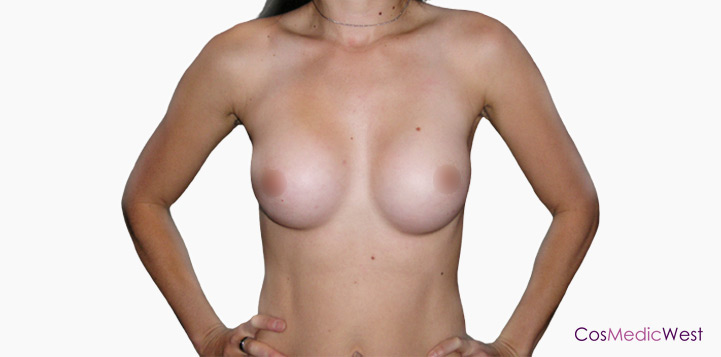 Breast Implants After