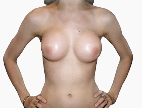 Breast Implants Perth - After