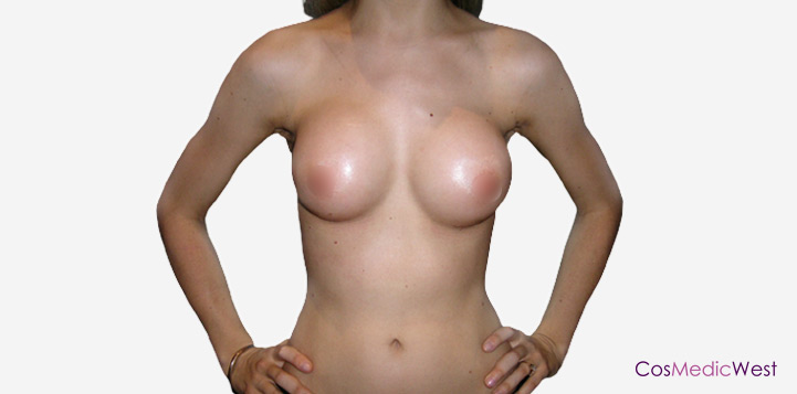 Breast Implants Perth After