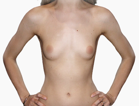 Breast Implants Perth - Before